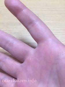 アトピスマイル 指の間手荒れ2